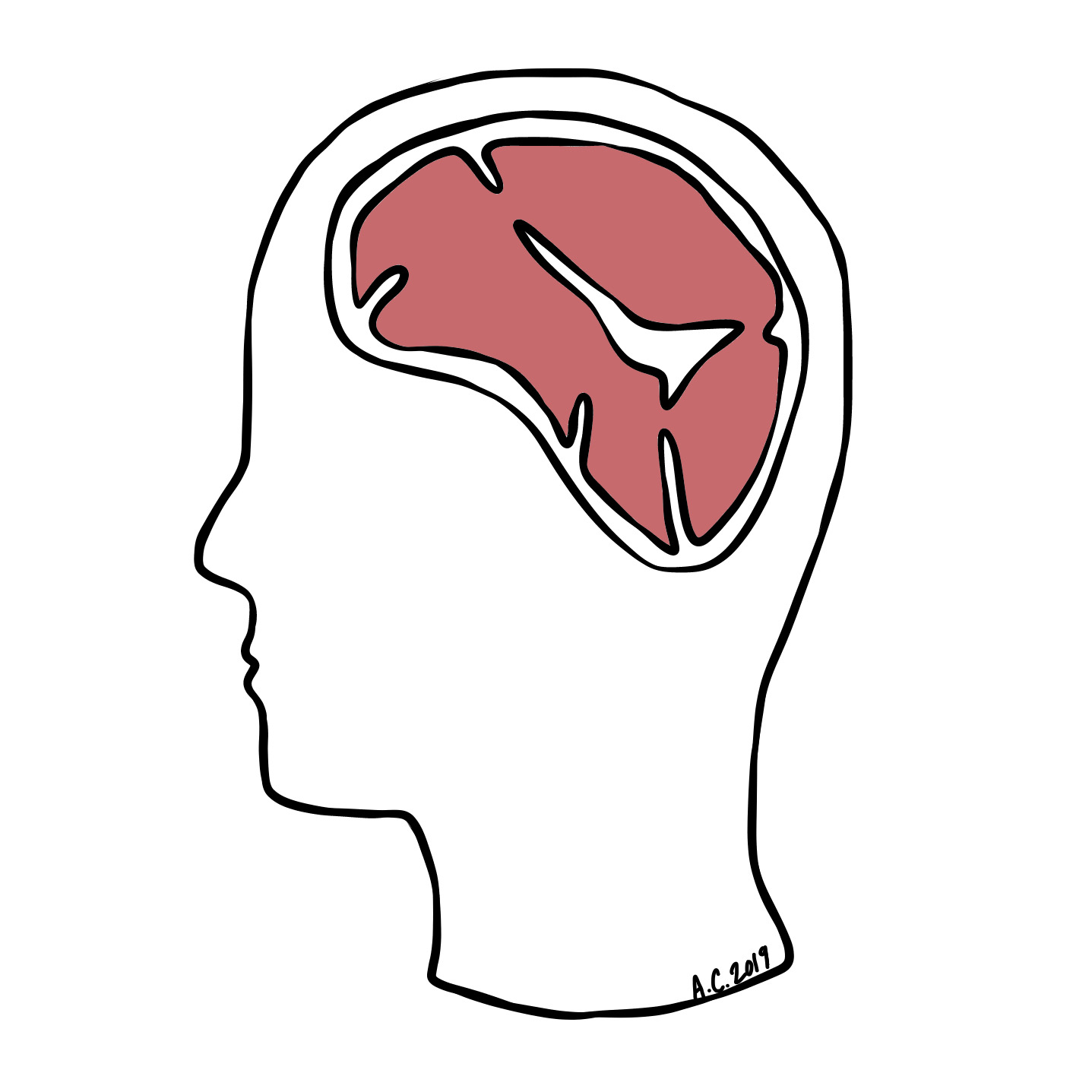 A human's brain replaced with steak, illustrated by the author.